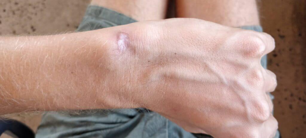 My leishmaniasis scar